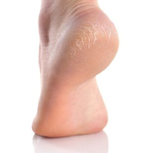 The Causes and Treatment Options For Cracked Heels