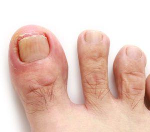 3 Common Causes Of Ingrown Toenails