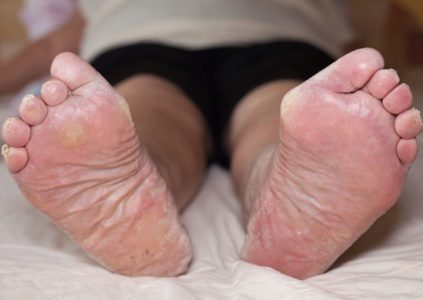 5 Ways To Treat Swollen Ankles and Feet