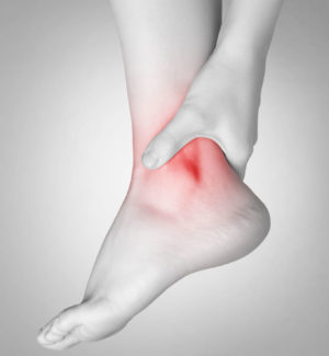 Rheumatoid Arthritis and Your Ankles
