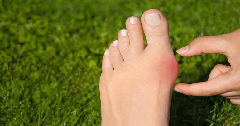 5 Reasons Why Minimally Invasive Bunion Correction Is Best