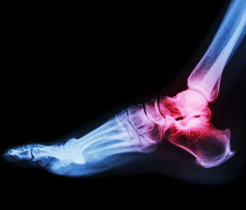 What Causes Ankle Arthritis?