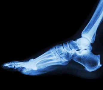 The Cost Of Failed Ankle Surgery