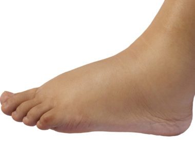 5 Reasons Your Feet Are Swollen