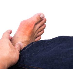 5 Common Causes of Big Toe Arthritis