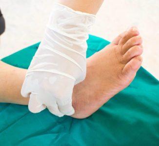 Understanding Charcot Arthropathy