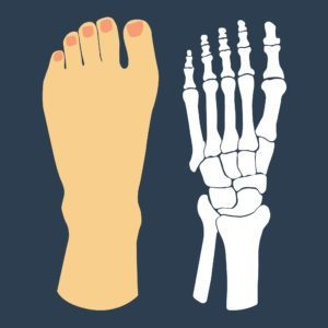 Three Causes Of Pain On The Top Of Your Foot