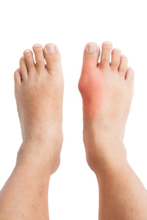 Why Gout Isn't Always Easy To Treat