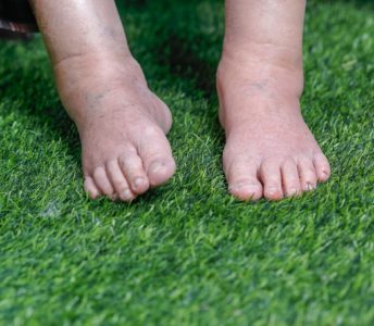 5 Ways To Reduce Swelling After Foot Or Ankle Surgery
