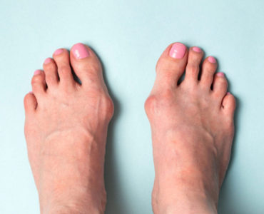 5 Ways To Shrink A Bunion Without Surgery