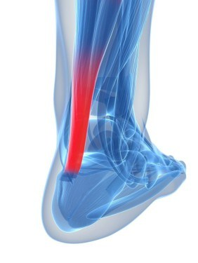 What is Achilles Tendinitis?