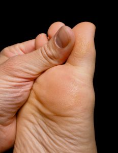 New Option For Big Toe Joint Replacement