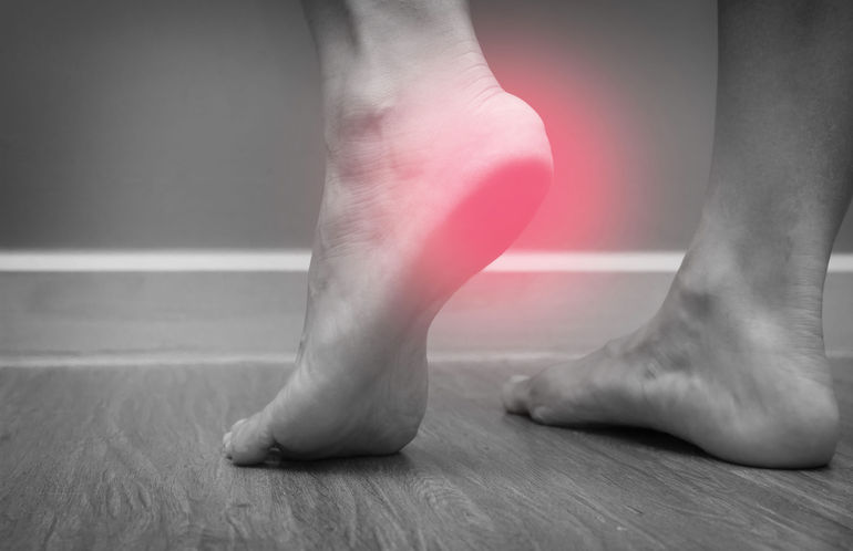 Tips for Identifying & Treating Heel Fractures