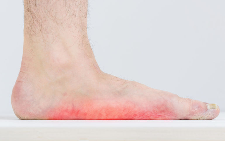 Tips for Identifying & Treating Flatfoot
