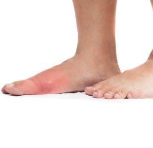 A Closer Look At COVID Toes
