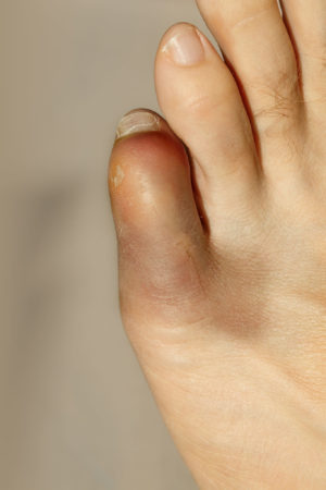 How To Treat A Sprained Toe