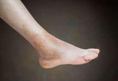 The Long Lasting Effects Of An Ankle Sprain