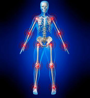 Joint, Bone Pain Higher With Filgrastim Biosimilars