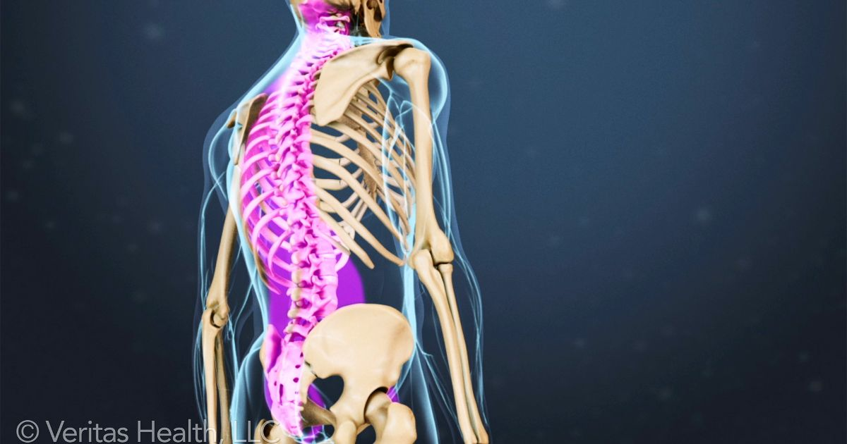 A Guide to Spinal Anatomy and What Can Go Wrong