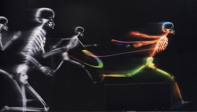 How orthopedic startups use SPEED as a weapon