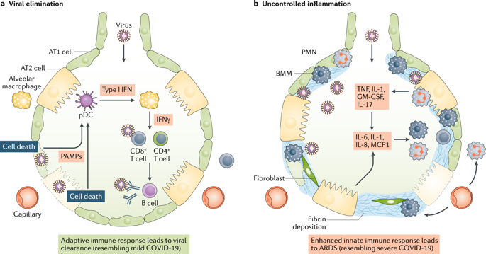 COVID-19 revisiting inflammatory pathways of arthritis