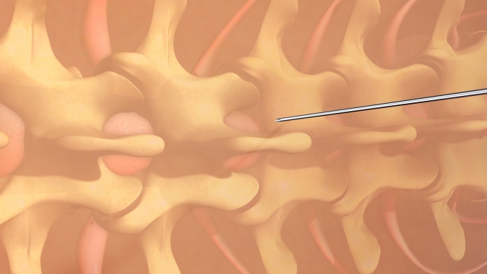 Pandemic Pain Care: Injections, Stimulators, and Interventional Procedures