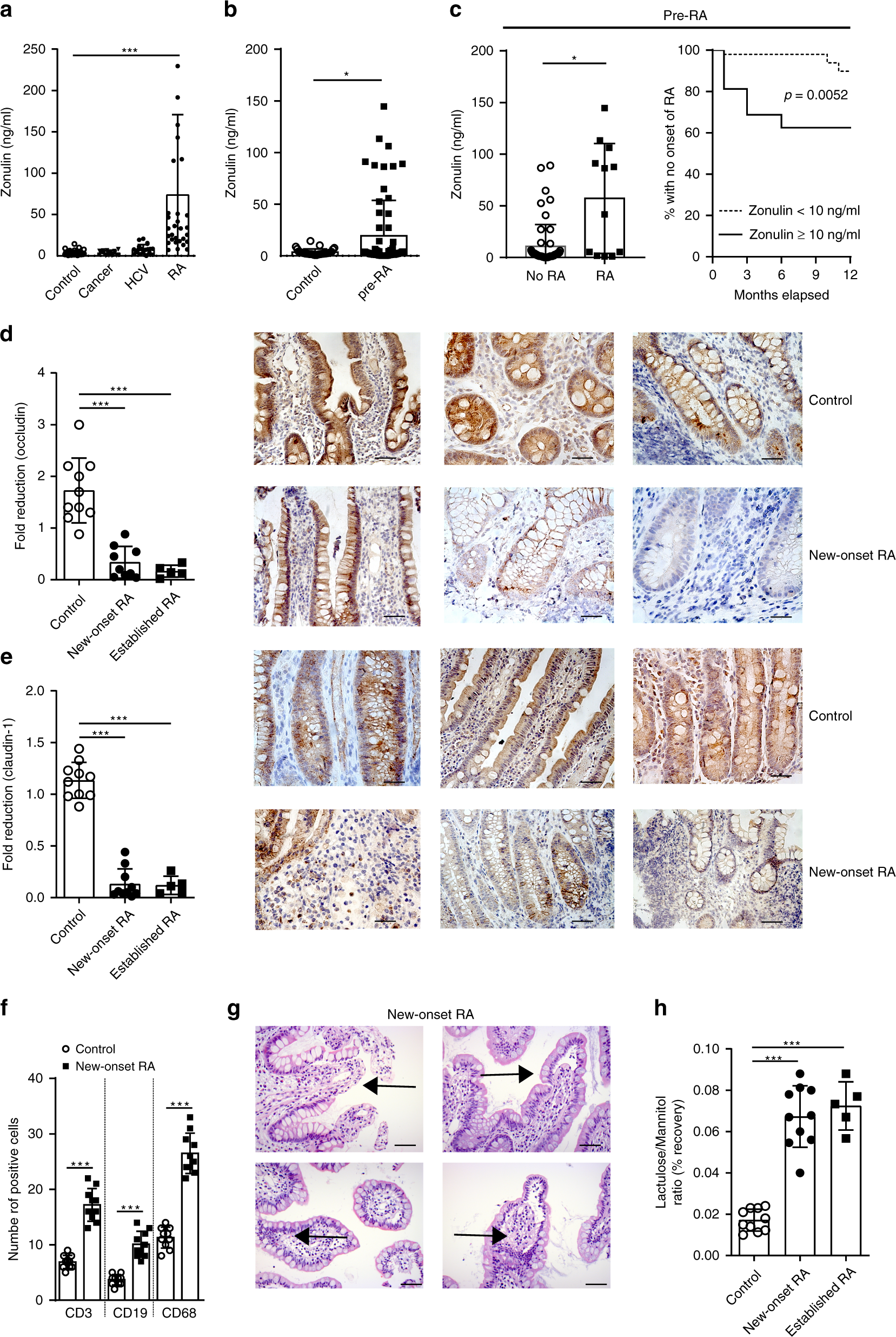 Targeting zonulin and intestinal epithelial barrier function to prevent onset of arthritis
