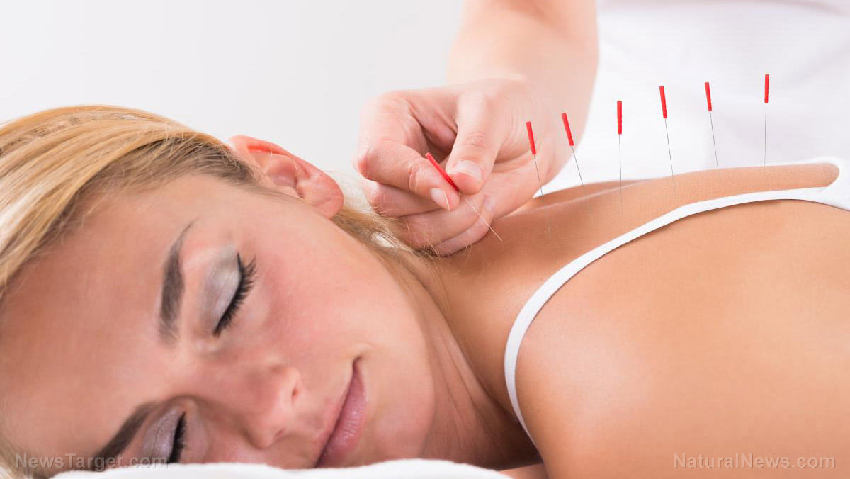 Strong scientific evidence points to acupuncture as an effective treatment for anxiety disorders