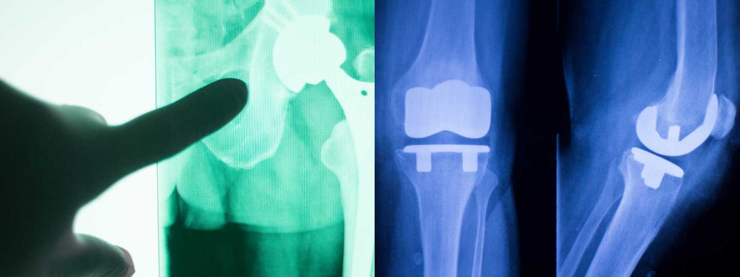 Making informed decisions about joint replacement surgery