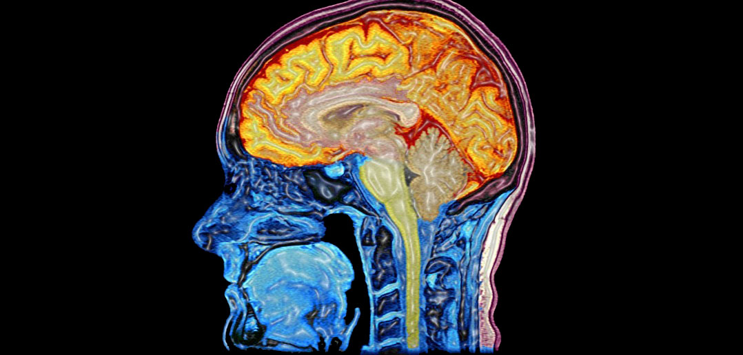 Study finds dietary flavanols boost brain oxygenation and cognition in healthy adults