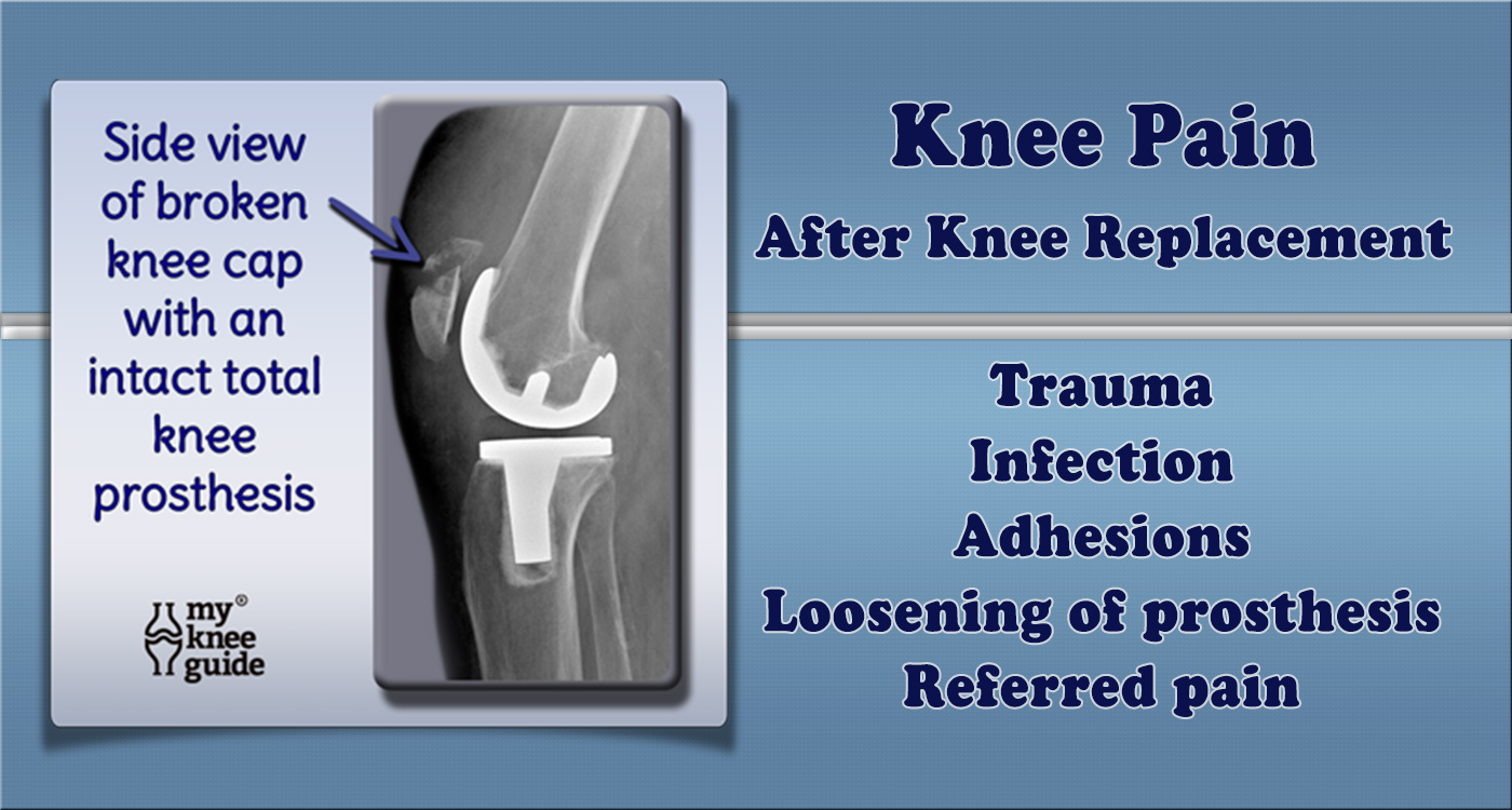 How to Manage Pain After Knee Replacement Surgery picture