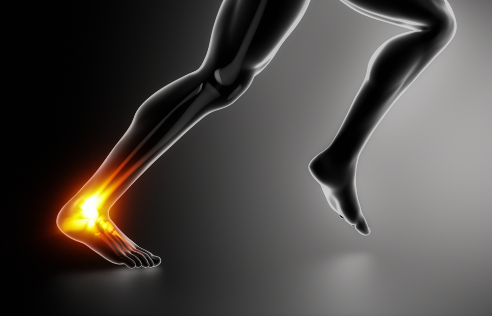 Achilles' Heel: Controversies in the Management of Achilles Tendon Ruptures