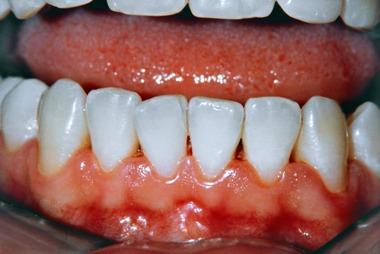 Gum disease bug linked to rheumatoid arthritis – Patient Talk
