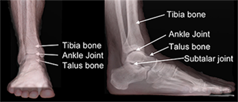 How to Identify a Broken Ankle