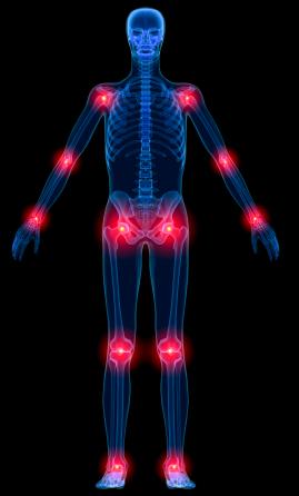Doctors and rheumatoid arthritis patients differ on perception of disease activity – Patient Talk