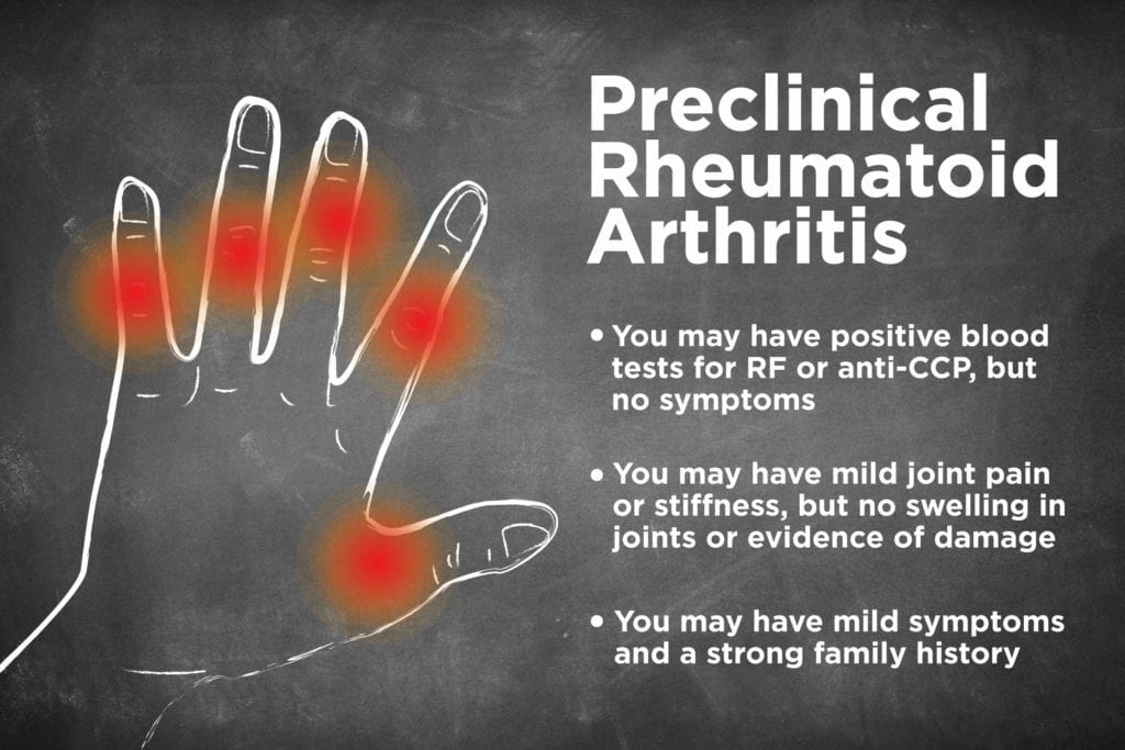 Preclinical Rheumatoid Arthritis: What Is It, Exactly?
