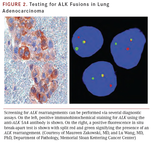 Molecular diagnostic testing in non small cell lung cancer for Fish test for cancer