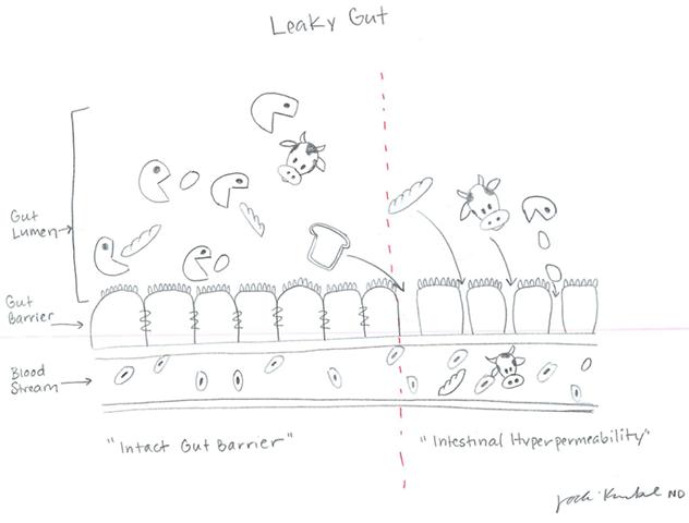 leaky-gut-jodi.png