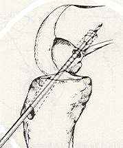 operacni technika