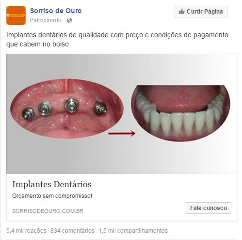 sorriso-ouro-anuncio