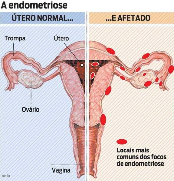 Endometriose   X   contraceptivos hormonais