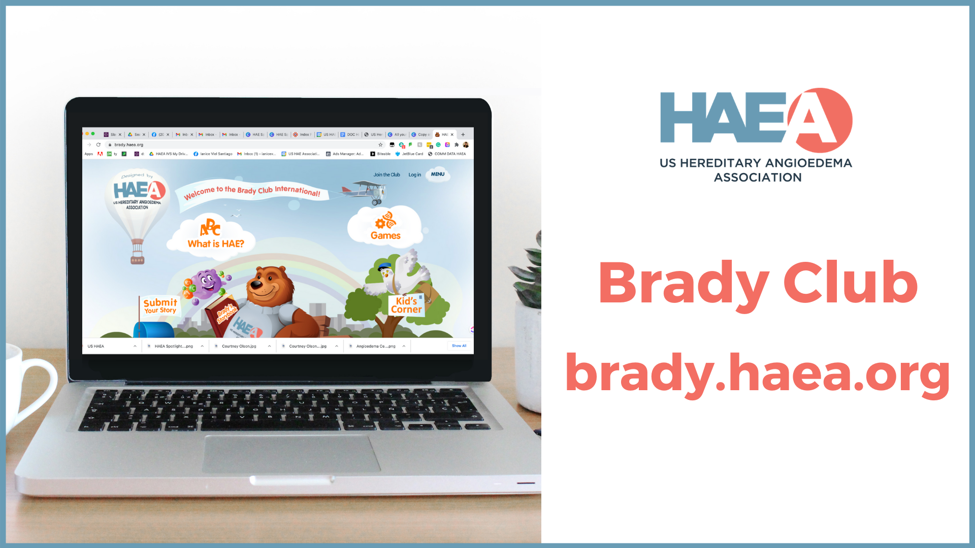 The Brady Club invites children to share their story!