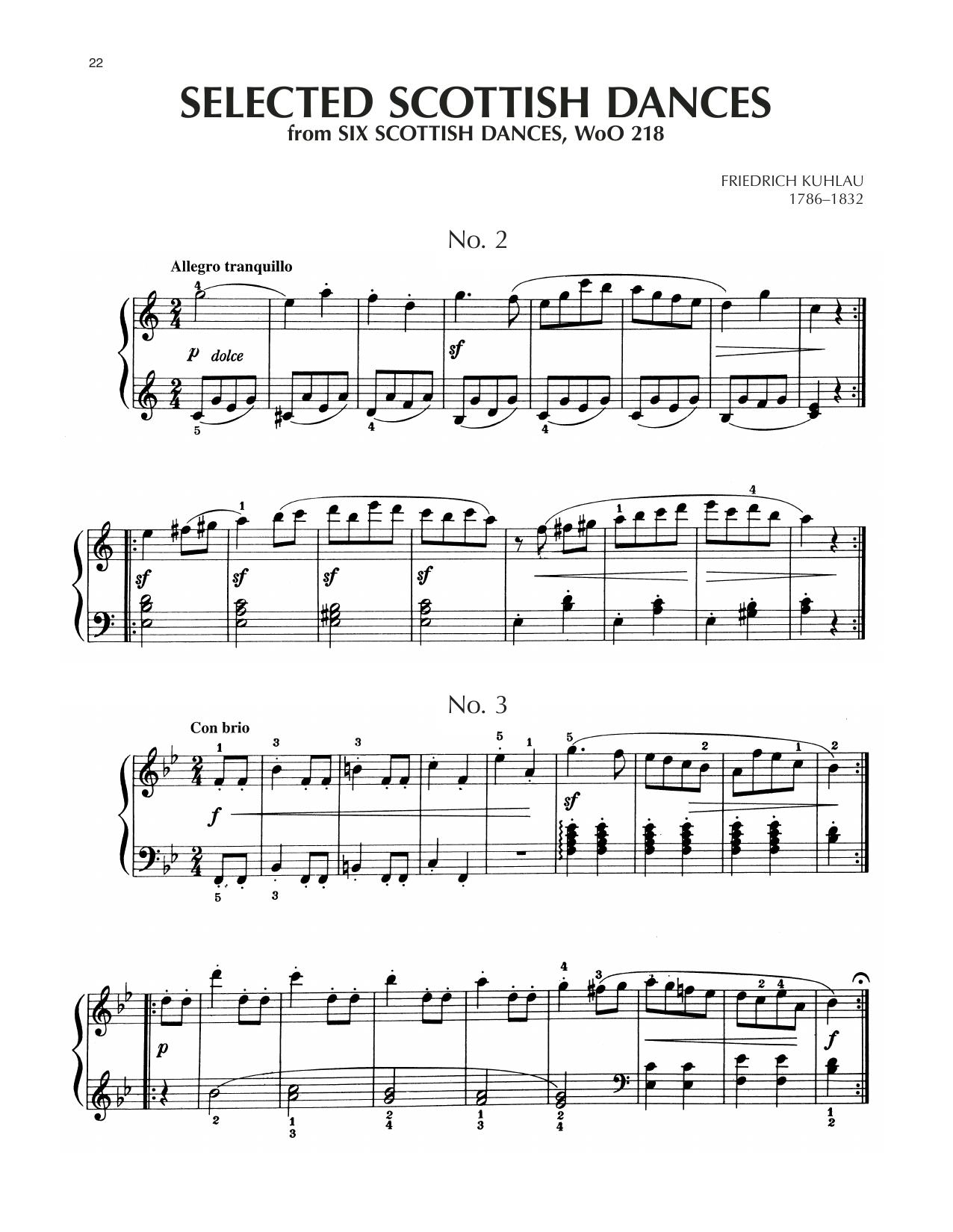 Scottish Dance No. 2 Sheet Music