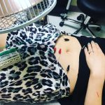 Slimming + Toning AcuSculpt™ Massages at NJ Acupuncture {Jersey City + Bayonne}