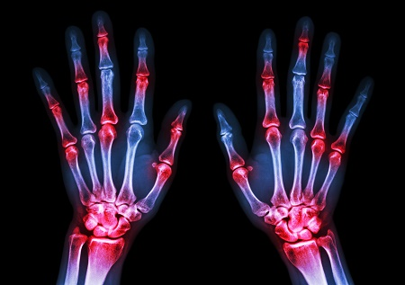 X-ray of hands, showing inflamed, arthritic joints