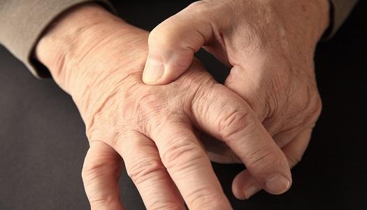 rheumatology, rheumatoid arthritis, dermatology, psoriatic arthritis, 3D, joints, drug adherence