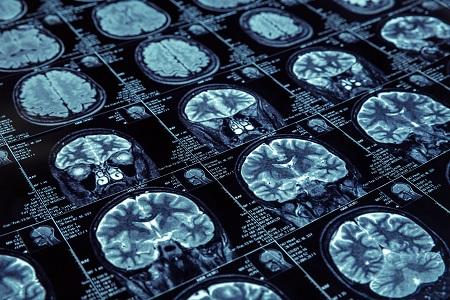 neurology, multiple sclerosis, MS, ECTRIMS 2016, pharmacy, disease-modifying treatment, DMT, relapsing-remitting multiple sclerosis, RRMS, natalizumab, fingolimod