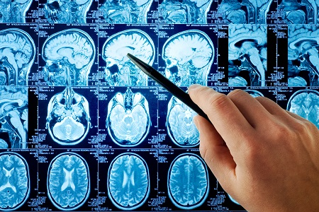 neurology, multiple sclerosis, MS, ECTRIMS 2016, pharmacy, infectious disease, HIV/AIDS, raltegravir