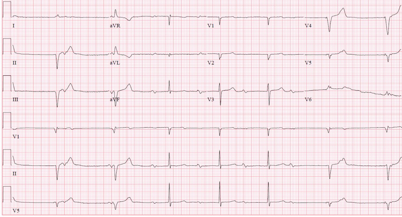 Dual+Chamber+Pacemaker+Ecg cardiac pacemaker ecgs - ekg - ecg ...