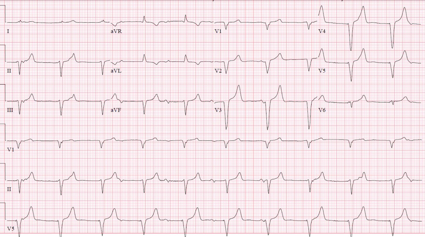 atrial pacing spike, V = ventricular pacing spike, E = ventricular ...